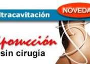 Ultracavitacion liposuccion ultrasonica
