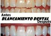 Odontologia integral,  clinica dental, cirujano dentista  en monterrey