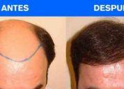 Implantpel transplante de cabello 6 y 12 meses sin interes