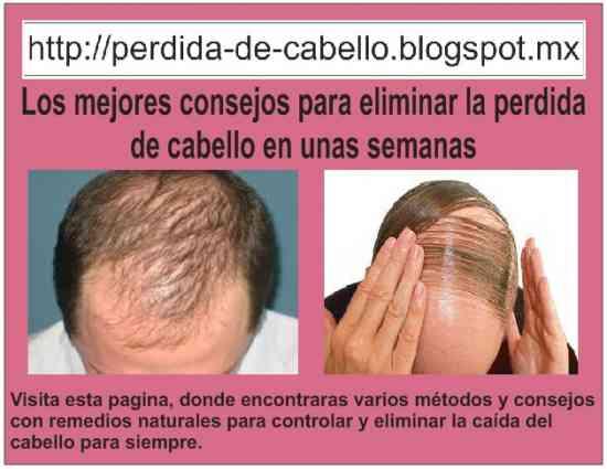 Tratamientos caseros para la caida del pelo